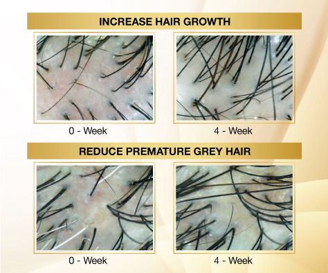 increase hair growth reduce premature grey hair